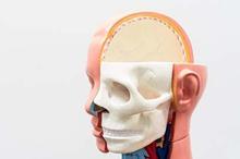 Tulang tapis berfungsi membentuk struktur hidung bagian dalam