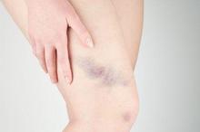 Ekimosis adalah lebam berwarna ungu yang biasanya terletak di lengan atau kaki