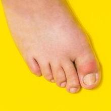 Pertolongan pertama pada asam urat bisa dilakukan pada persendian dekat jempol kaki