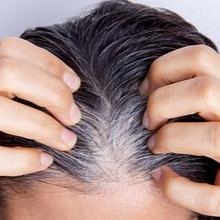 Piebaldism adalah kondisi medis yang sebabkan rambut putih sejak lahir.