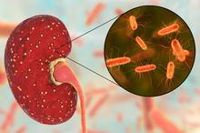 Pielonefritis terjadi karena infeksi saluran kemih