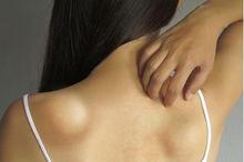 Benjolan di punggung biasanya merupakan lipoma atau kista