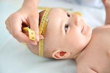 Gejala hidrosefalus pada bayi dapat ditandai dengan ukuran kepala bayi yang besar dan tidak biasa