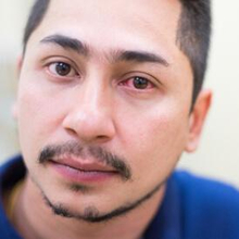 Gejala konjungtivitis adalah mata merah, gatal, hingga peningkatan produksi air mata