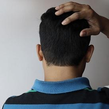 Obat sakit kepala belakang ada yang alami hingga medis