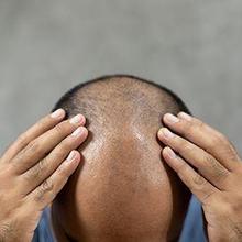 penyebab kebotakan pada pria