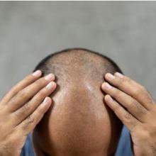 Rambut botak dapat diatasi dengan bahan alami seperti lemon dan ginseng merah.