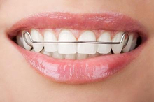 Retainer gigi perlu dipakai setelah behel untuk menahan gigi agar tidak kembali berantakan