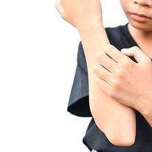 Efek samping obat cacing adalah gatal-gatal