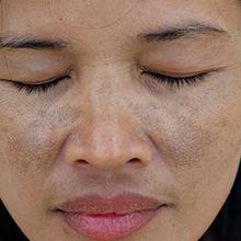 Ochronosis dapat terlihat seperti lebam di wajah