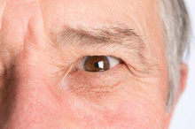 Mata kering dan katarak adalah beberapa gangguan mata yang acap kali menyerang lansia