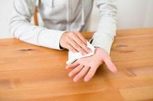 Keringat berlebih pada telapak tangan dapat disebabkan oleh hiperhidrosis primer