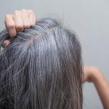 Sindrom Marie Antoinette adalah kondisi ketika warna rambut seseorang tiba-tiba berubah menjadi putih secara tiba-tiba