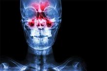 Sinusitis terjadi ketika lubang yang disebut ostia menyebabkan sinus maksilaris tidak bisa mengalirkan cairan.