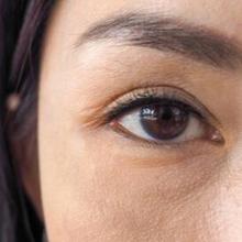 Sklera mata atau bagian putih pada mata membentuk dinding pelindung bola mata