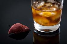 Hepatitis alkoholik bisa menyebabkan kerusakan hati yang parah