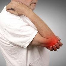 Inflamasi adalah peradangan di tubuh