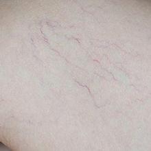 Telangiektasis adalah kondisi munculnya pola garis merah pada permukaan kulit akibat pembuluh darah kecil yang pecah