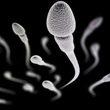 Teratozoospermia adalah kelainan kondisi sperma