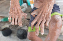 Komplikasi kusta umumnya terjadi akibat penyakit kusta yang terlambat disadari oleh pengidap