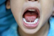 Enzim ptialin dapat mengubah karbohidrat menjadi gula