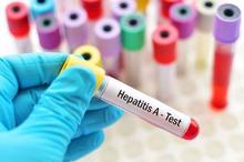 Hepatitis A bisa ditularkan melalui kontaminasi makanan dan minuman