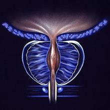 penyakit prostat pada pria