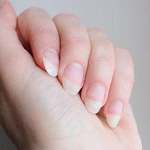 Salah satu gejala osteoporosis adalah kuku jari yang melemah dan rapuh