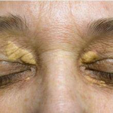 Xanthoma adalah kelainan kulit yang ditandai dengan plak atau benjolan lemak kekuningan