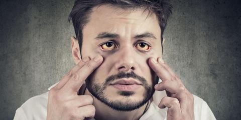 Cara Memutihkan Mata Kuning Agar Kembali Putih