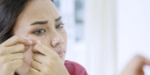 Komedo Di Pipi Bikin Risih Ini 10 Cara Menghilangkannya
