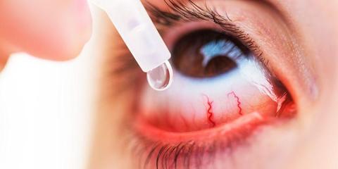 Beberapa Cara Ini Efektif Mengatasi Mata Merah Akibat Kondisi Mata Kering