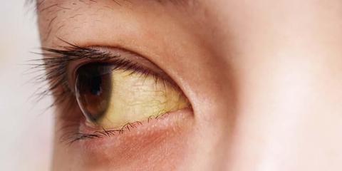 9 Penyebab Mata Kuning Pada Orang Dewasa Kenali Sinyal Tubuh Anda