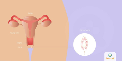parazitoza simptomi medicamente pentru tratamentul negi genitale papiloame