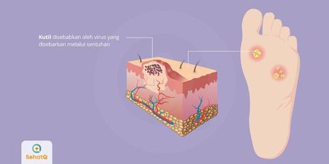 forum papiloma virus)