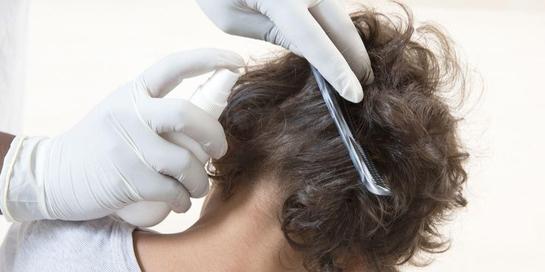 Obat kutu rambut alami untuk anak sangatlah beragam, mulai dari minyak kayu putih hingga neem oil.