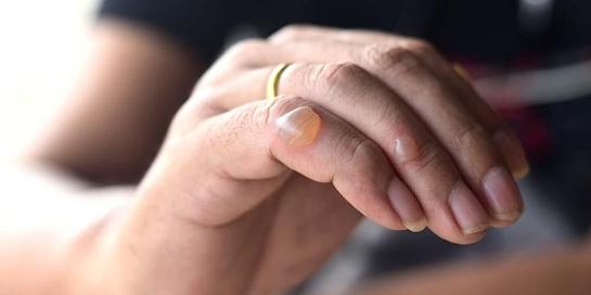 Bentol berair atau luka melepuh tidak boleh dipecahkan sendiri