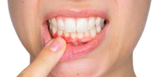 Avulsi gigi adalah keadaan yang menyebabkan perubahan warna pada gigi akibat pendarahan pulpa