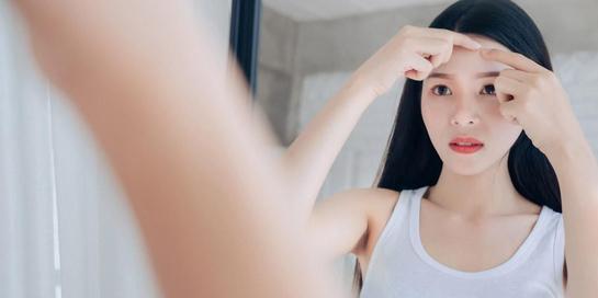 Arti letak jerawat di dahi bisa menandakan Anda harus kembali mencermati jenis produk parawatan rambut yang Anda gunakan