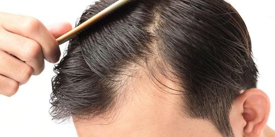 Memijat kulit kepala dapat menstimulasi sirkulasi darah untuk merangsang pertumbuhan rambut