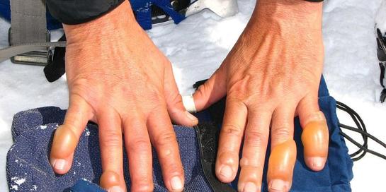 Frostbite atau radang beku adalah kondisi kulit terpapar dingin ekstrem