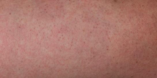 Bintik merah demam berdarah umumnya rata dan tidak bergelombang