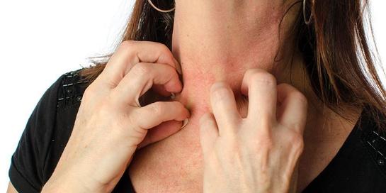 Cara menghilangkan gatal karena ulat bulu sangatlah penting untuk diketahui.