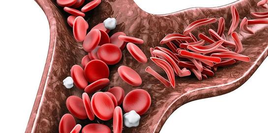 Anemia sel sabit merupakan salah satu jenis anemia yang berbahaya, karena tidak dapat disembuhkan