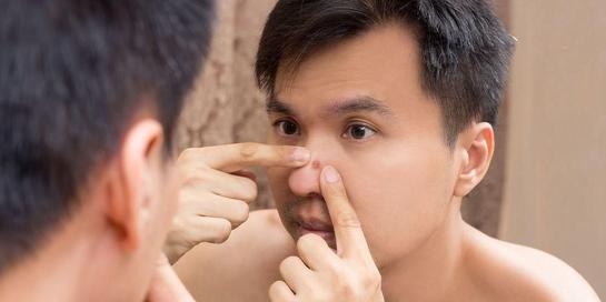 Memencet jerawat di hidung dapat menyebabkan infeksi menjadi lebih parah