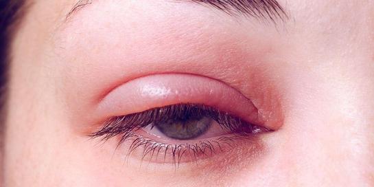 Kelopak mata bengkak disebut blefaritis