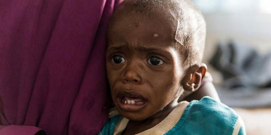Malnutrisi adalah kondisi yang bisa memicu gizi buruk pada anak