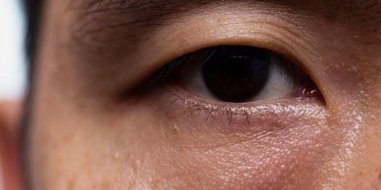 Penuaan merupakan salah satu penyebab umum dari mata sayu.