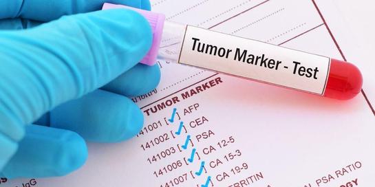 Tumor marker dapat membantu mendeteksi kanker lewat tes