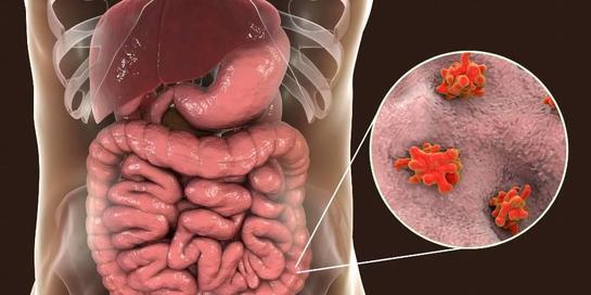 Disentri amoeba bisa menyebabkan diare parah yang disertai dengan darah